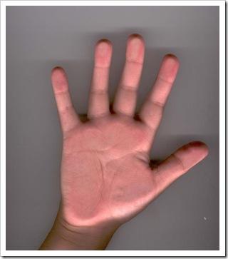 Swayam's hand_24-03-2008